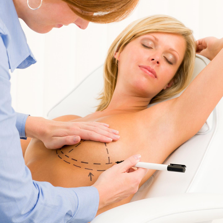 Estetska kirurgija - Povećanje grudi - Lege Artis 001