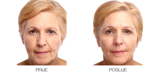 Juvederm before-after - Lege Artis