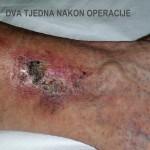 Liječenje venskih ulkusa - Dva tejdna nakon operacije - Lege artis