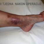 Liječenje venskih ulkusa - Tri tjedna nakon operacije - Lege artis