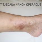 Liječenje venskih ulkusa - Pet tjedna nakon operacije - Lege artis