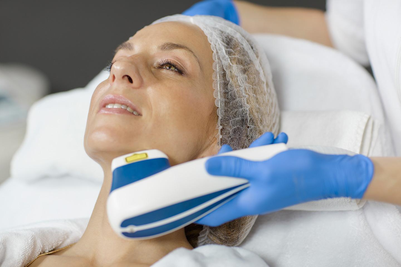 Lasersko uklanjanje kapilara lica i nosa - Lege Artis 002