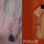PRP-terapija-pomladivanja-maticnim-stanicama-Lege-Artis-003