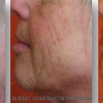 PRP-terapija-prije-poslije-lege-artis-003