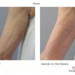 Venus Legacy - prije i poslije - Lege Artis 004
