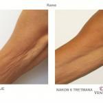 Venus Legacy - prije i poslije - Lege Artis 006