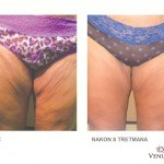 Venus Legacy - prije i poslije - Lege Artis 008