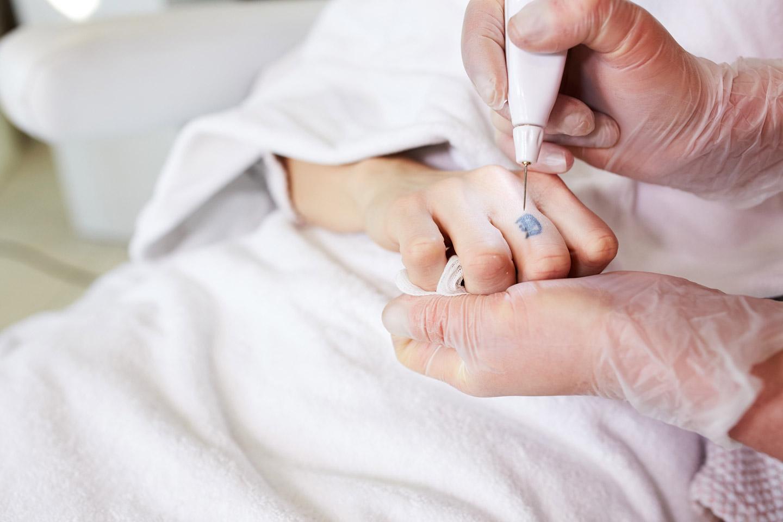 Soft surgery zahtijeva 1 4 tretmana sa vremenskim intervalom barem