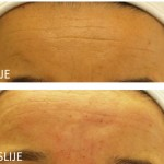 Botulinum toxin terapija Bora - Lege Artis