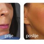 PRP-terapija-005-lege-artis
