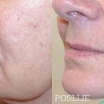 PRP-terapija-pomladivanja-maticnim-stanicama-Lege-Artis-002
