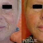PRP-terapija-pomladivanja-maticnim-stanicama-Lege-Artis-004
