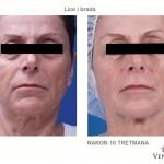 Venus Legacy - prije i poslije - Lege Artis 009
