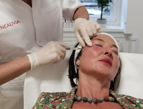 Neuvia dermalni fileri – na edukaciji kod dr. Sergeja Ivanova